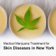 Medical marijuana skin inflammation