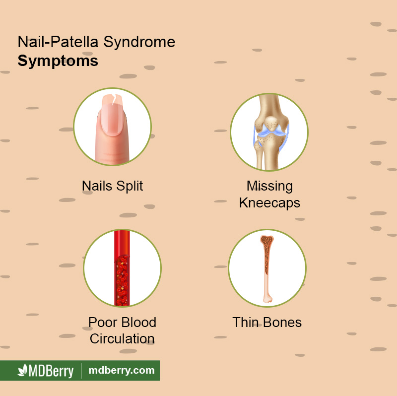 Nail Patella Syndrome Symptoms